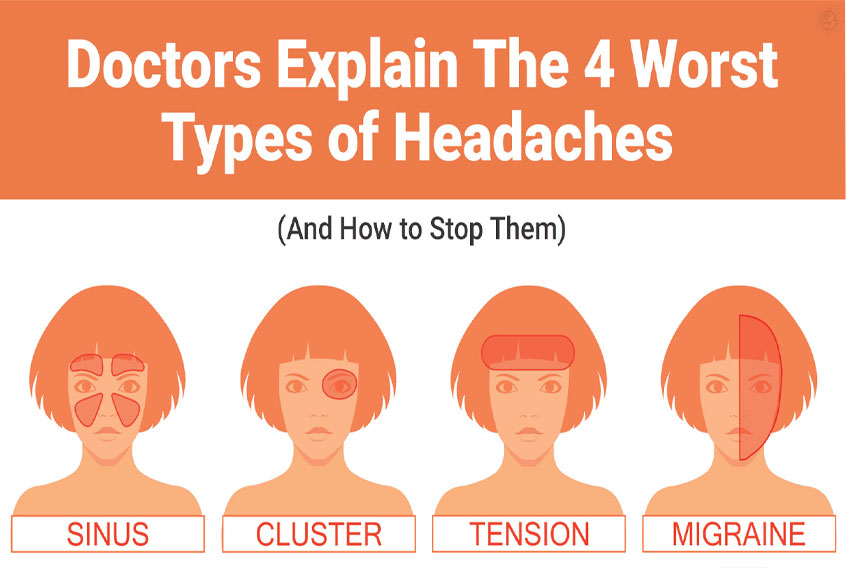 All Types of Headaches