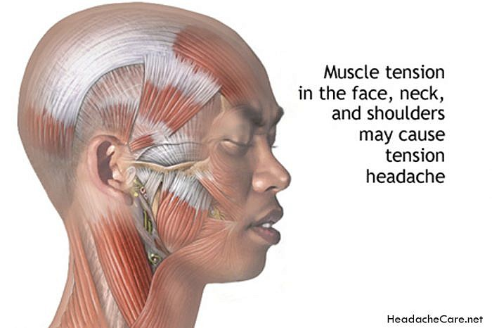 No More Headaches: 10 Surprising Headache Triggers